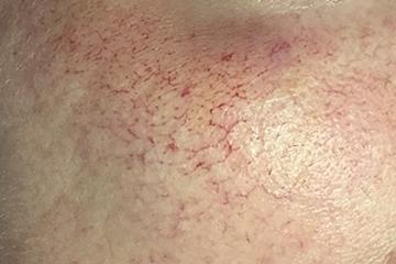 Couperose, Rosacea behandeling
