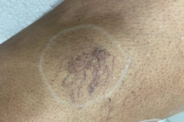 Beenvaatjes laserbehandeling