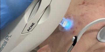 NIEUW! Lasertherapie bij acne